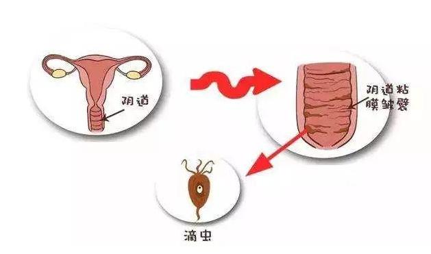 宫颈肥大图片,宫颈肥大症状,宫颈肥大原因,宫颈肥大治疗