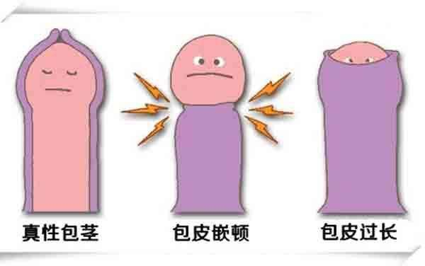 包皮包茎图片,包皮包茎区别,包皮包茎手术,包皮包茎咨询